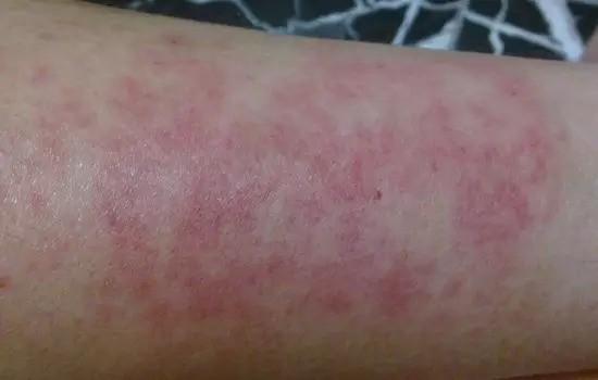 allergie peau aloe vera