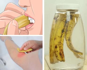 utilisations peau de banane
