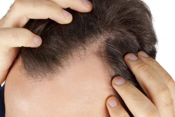 calvitie aloe vera repousse cheveux
