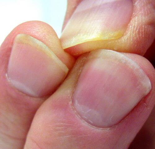 doigts jaunis dentifrice