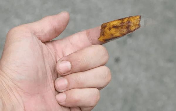 peau banane pour enlever une écharde