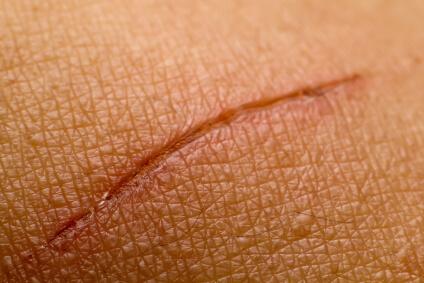 infection cutanée aloe vera