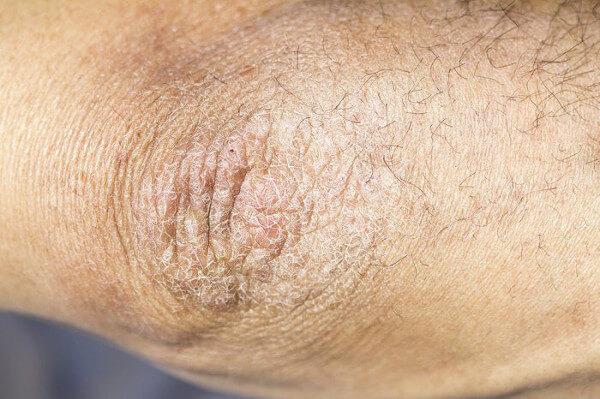 peau rugueuse aloe vera