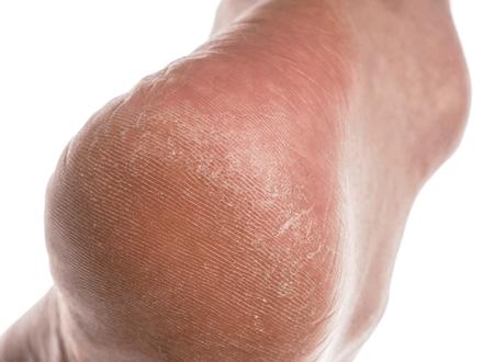 pieds secs aloe vera