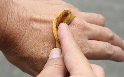 banane soulage 7) Soulage les piqures d'insecte