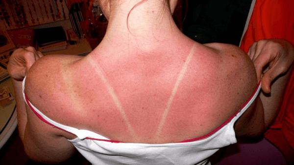 Des coups de soleil ou brûlures superficielles