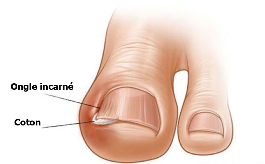 soins des ongles des pieds maison
