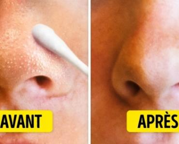 points nois sur le nez avant après