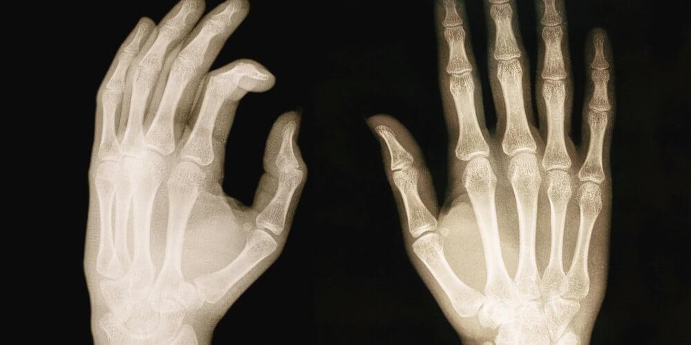romarin-rhumatisme