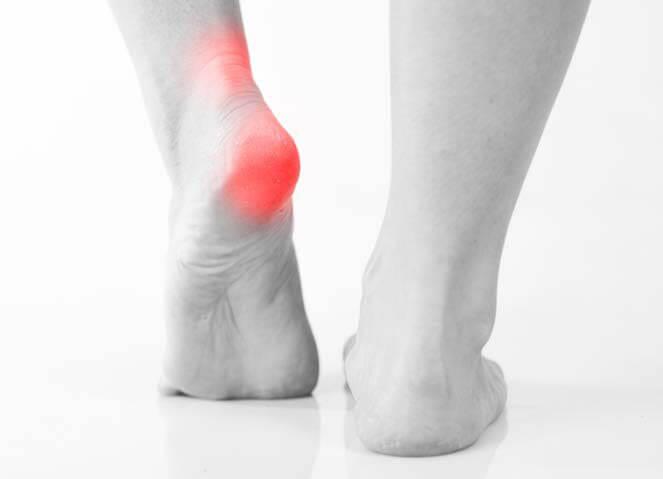 douleur-au-talon-pied