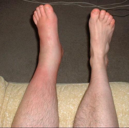 pieds-et-mollets-gonflés